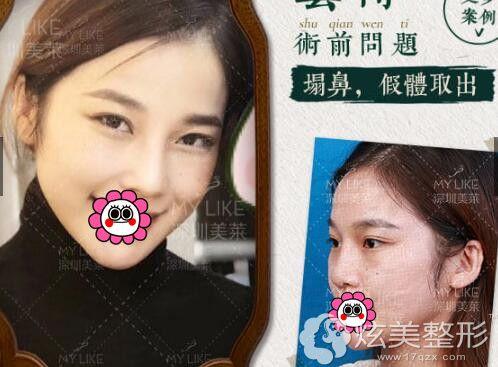 深圳美莱鼻部整形案例