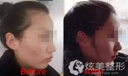 武汉冠美口腔医院隐形牙齿矫正案例