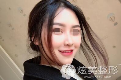 北京圣贝口腔牙齿正畸案例