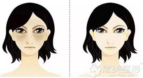 眼袋会显得人更加老气