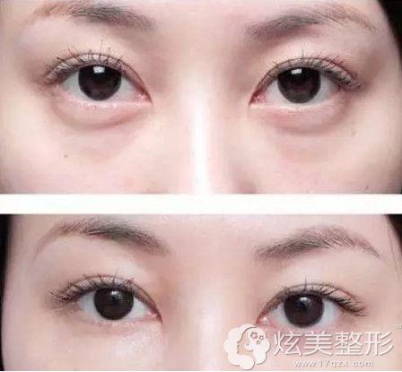潘志强院长做祛眼袋案例