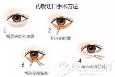 蚌埠东方美莱坞内吸祛眼袋手术过程