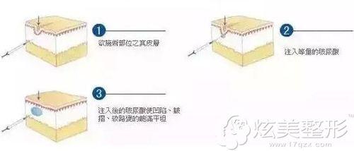 福州海峡讲玻尿酸丰太阳穴的手术原理