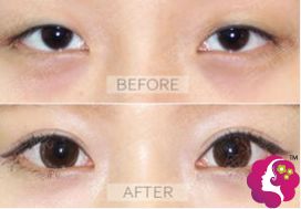 割双眼皮手术案例对比图