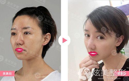 重庆华美医生张国强做自体软骨隆鼻失败修复案例