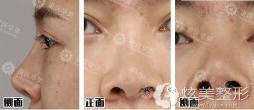 在重庆华美做鼻修复术前鼻假体轮廓明显、鼻孔外露