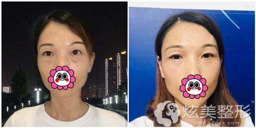 广州海峡郭栋做外切去眼袋术前术后对比
