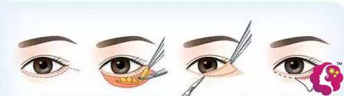 外切法去眼袋的手术原理步骤图