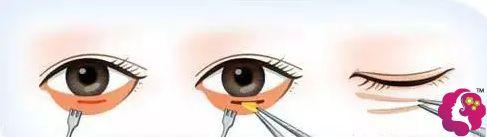 内路法去眼袋的手术步骤简易图