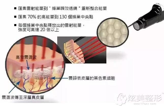 福州台江优惠的价格下拥有蜂巢皮秒祛斑系统