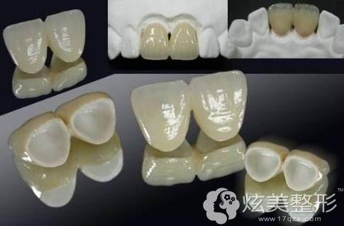 烤瓷牙数量影响是否能做牙齿矫正