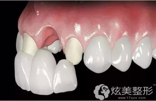 烤瓷牙位置影响术后能否做牙齿矫正