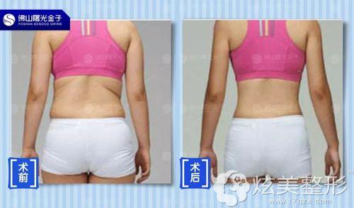 何为主任做臀部吸脂术前术后对比效果图