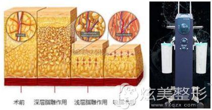 佛山曙光金子做臀部抽脂采用的技术及设备