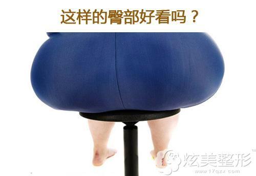 因久坐不运动导致肥大的臀部