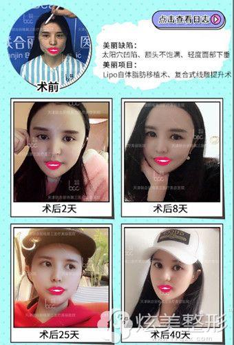天津联合丽格第三医疗美容医院复合线雕提升案例