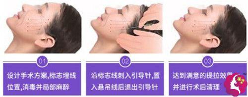 天津联合丽格第三医疗美容医院采用复合线雕提升术操作步骤