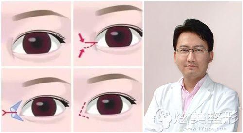 温州星范严健频主任讲做开眼角手术的原理图