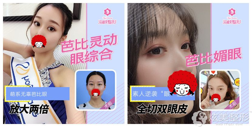 谢燕燕尤为擅长韩式双眼皮