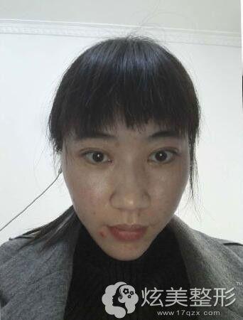 面诊遵义韩美术前皮肤状态较差
