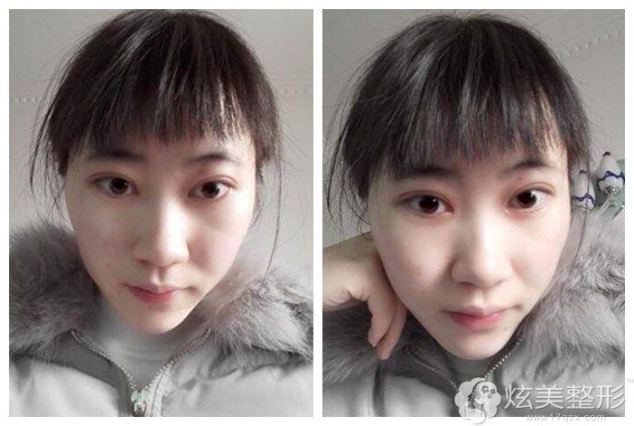到遵义韩美做opt祛斑术后恢复