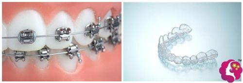 恒牙期采用传统或隐性矫正器进行矫正