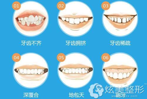儿童出现这6中情况需要做牙齿矫正