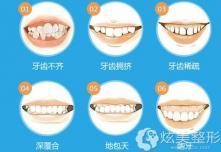 广州圣贝分享儿童牙齿矫正什么年龄做合适并公布优惠价格
