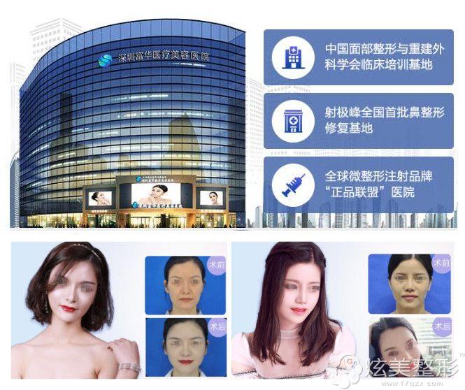 到深圳富华做脂肪移植填充案例
