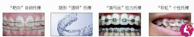 结合不同人群的不同需求,昆明雅度的牙套主要分为四种