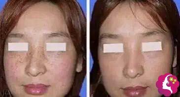 到南充医美尔做调Q激光摆脱了32年的斑点脸