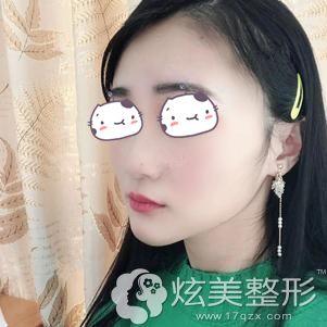 到上海伊莱美做下颌角手术术后79天恢复效果