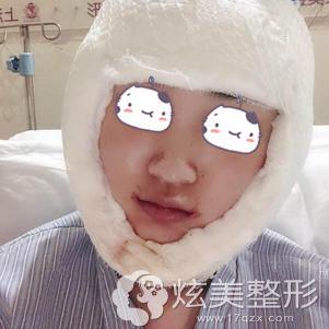 李湘原院长帮我做下颌角整形术后3天伤口包扎严实