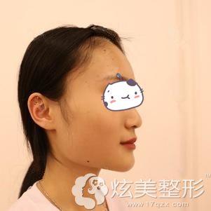 到上海伊莱美整形做长曲线下颌角整形术前自己宽大的下颌角