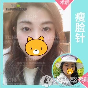 重庆时光进口BOTOX瘦脸针术前术后对比效果