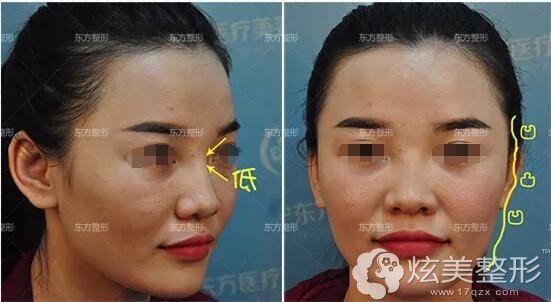 面诊南宁东方整形的龙海波医生设计鼻修复方案