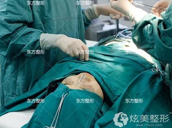 龙海波医生做鼻修复手术中