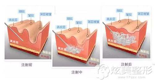 玻尿酸祛除皱纹的治疗步骤简易图