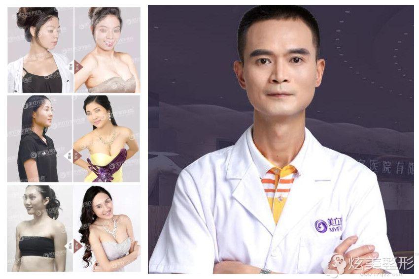 隆胸医生李志刚及案例分享