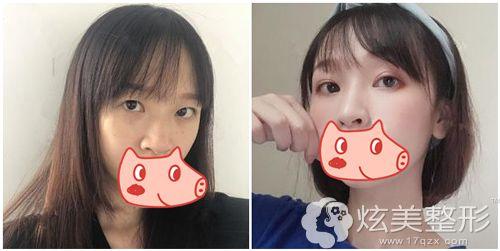 嘉兴曙光整形鼻综合整形术前术后对比图