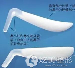隆鼻硅胶二段式假体