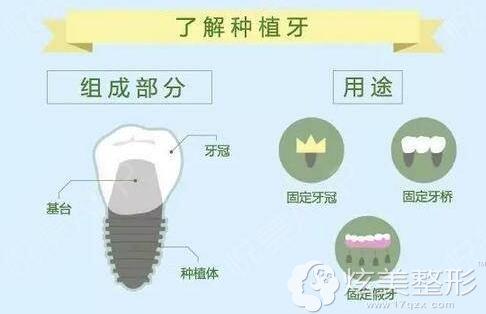 种植牙又被称为人类的第三副牙齿