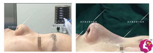肋软骨鼻头+筋膜外衣鼻综合案例