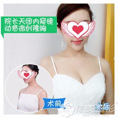 广州曙光做内窥镜隆胸手术案例