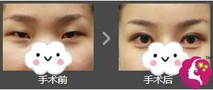 星之美做双眼皮手术的前后对比效果