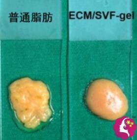 脂肪胶和普通脂肪的区别之处