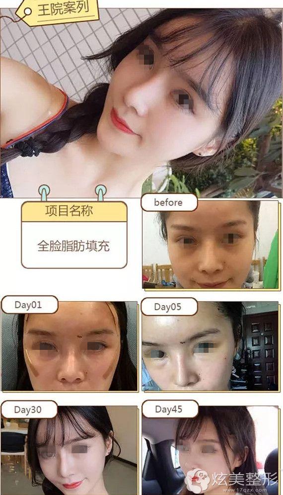 26岁白领到台州长青做脂肪填充面部案例