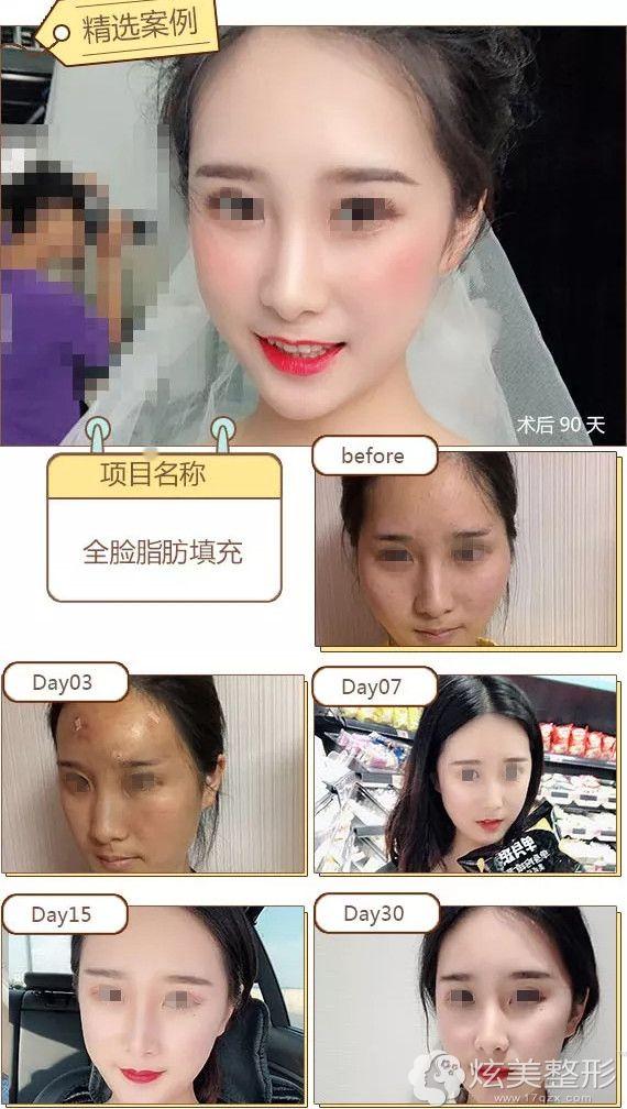 到台州长青做脂肪填充面部一月变新娘