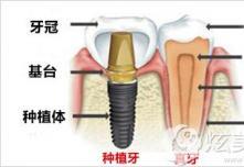 郑州拜博医生建议全口牙缺失可选做即刻种植牙价格还划算