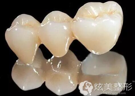 全瓷牙冠,全部由瓷材料制作的牙冠,不含金属